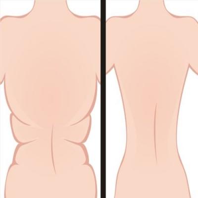Como se livrar das dobras nas costas e nos lados em 21 dias