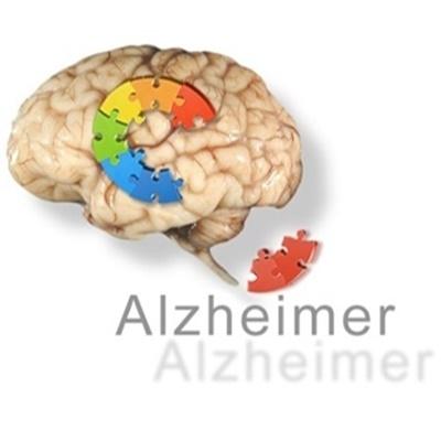 Alzheimer é uma doença degenerativa, vamos cuidar da nossa memoria