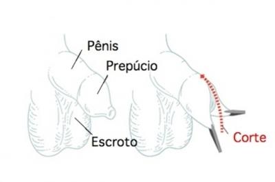 Cirurgia para fimose: Riscos e Recuperação