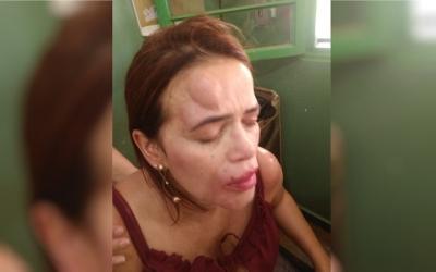 Diretora de escola é agredida por assessor de vereador