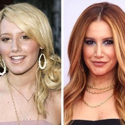 Como a cirurgia plástica mudou bastante essas celebridades