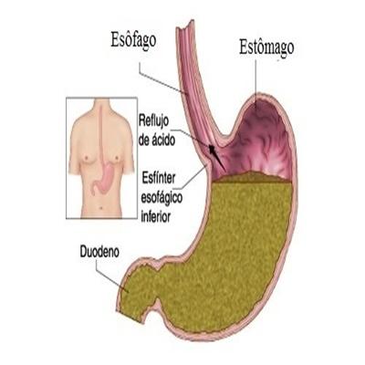 Conheça as principais causas que afetam o trato digestivo