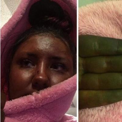 Mulher ficou parecendo Shrek depois de seu bronzeado falso dar seriamente errado