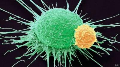 Cientistas israelenses afirmam ter encontrado a 'cura definitiva' para o câncer