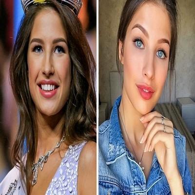 Rainhas da beleza na passarela vs. na vida real