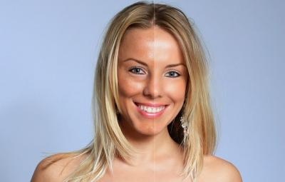 Dicas para evitar envelhecimento da pele