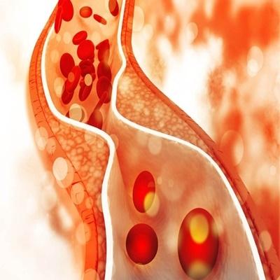 O colesterol bom pode ser perigoso para doentes cardíacos.