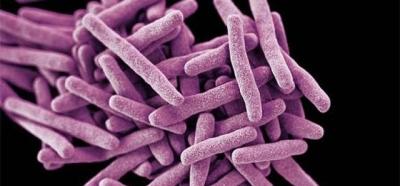Esse é o fungo mortal que está ameaçando a saúde mundial