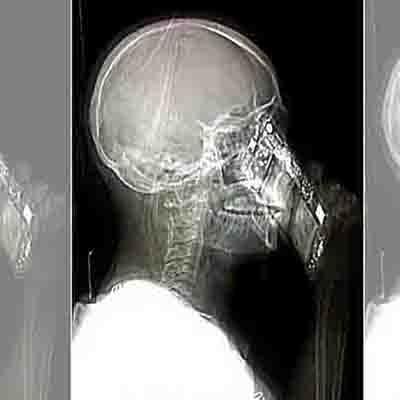 Mulher atende celular durante tomografia na Itália