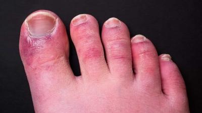 Alerta 'dedo covid'