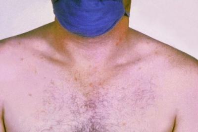O que é Febre tifoide, transmissão e prevenção