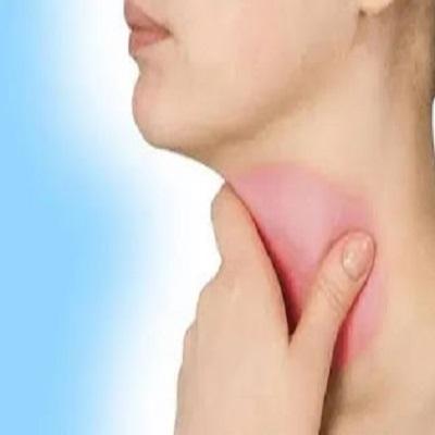 Faringite viral ou bacteriana - dor de garganta e febre