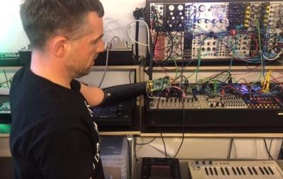 Braço protético vira superpotência musical