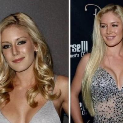Famosas que eram mais bonitas antes da cirurgia: Lindsay Lohan era perfeita