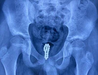 Médico retira vinte bolinhas magnéticas da bexiga de menino