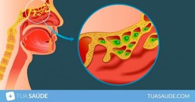 3 Remédios caseiros para sinusite: chá e outras opções