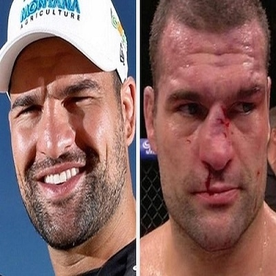 14 lutadores do UFC que ficaram desfigurados após suas lutas
