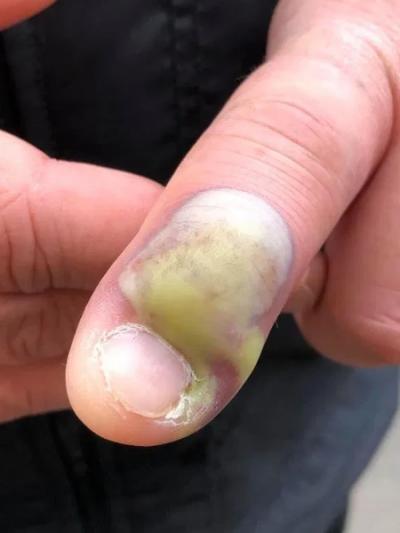 Homem faz operação de emergência por roer as unhas
