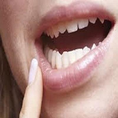 12 doenças que se manifestam pela boca: como identificar?