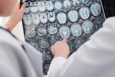 Doença de Niemann-Pick: o que é, sintomas e tratamento