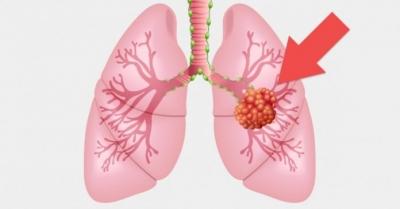 Nódulo no pulmão: o que significa e quando pode ser câncer