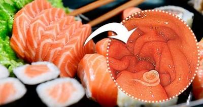 Mulher fica com verme na garganta após comer sashimi