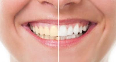 Como Clarear os Dentes com Bicarbonato?