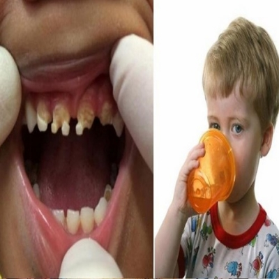 Os pais estão chocados com o que causou a deterioração maciça do dente