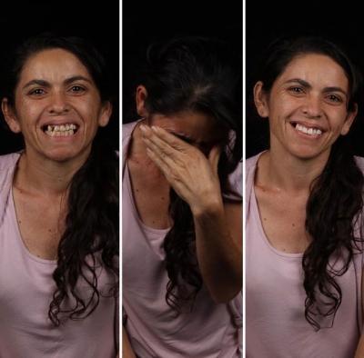 Dentista viaja o mundo transformando o sorriso de pessoas pobres, veja a reação