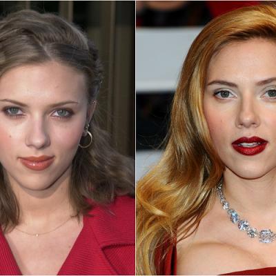O antes e o depois das celebridades mais favoritas de Hollywood