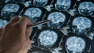 Cientistas brasileiros encontram forma de brecar avanço do Alzheimer