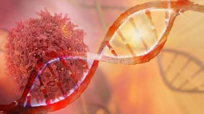 Novo teste de urina pode detectar câncer de bexiga