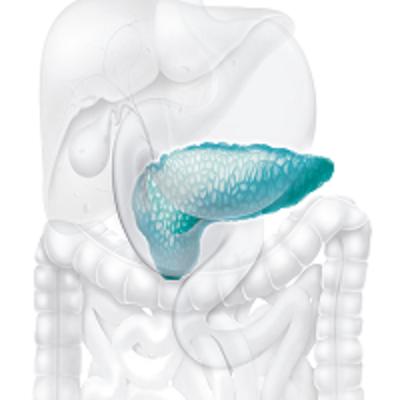 Dá para evitar o câncer de pâncreas?