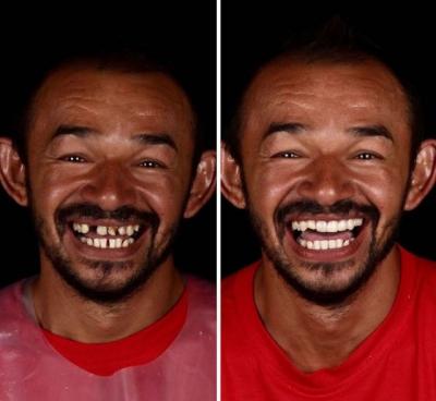 Dentista viaja o mundo transformando o sorriso de pessoas pobre, veja a reação d