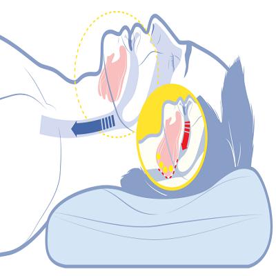 Sarcopenia seria uma das causas por trás da apneia do sono