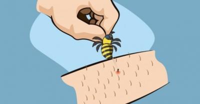 Primeiros socorros para picada de abelha ou vespa