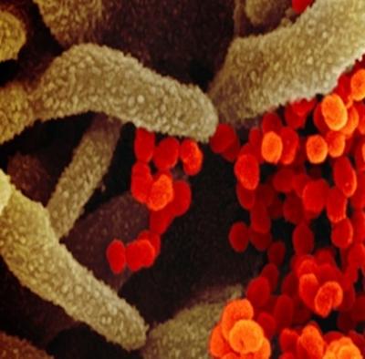 Estudo prevê outra grande pandemia