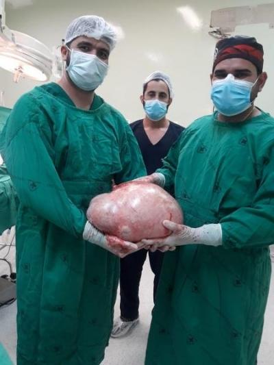 Não era gravidez: jovem retira tumor de 20 kg do ovário