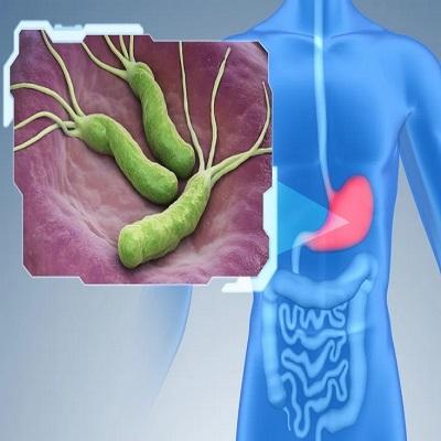 H. Pylori - A bactéria que faz um estrago no estômago