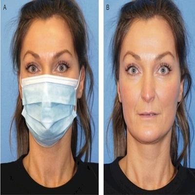 Estudo científico levanta hipótese de que usar máscaras rejuvenesce