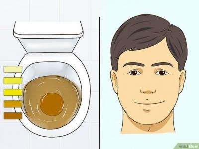 Urobilinogênio na urina: o que pode ser e o que fazer