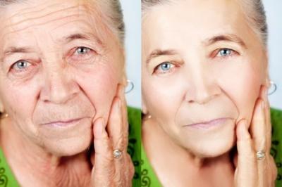 Lifting facial: o que é, quando é indicado e como é feito
