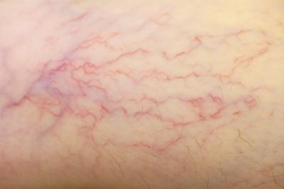 Vasinhos nas pernas (telangiectasia): principais causas e o que fazer