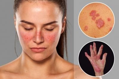 8 principais doenças autoimunes e o que fazer