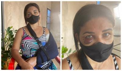 Funcionária de padaria tem braço quebrado após pedir para homem usar mascara