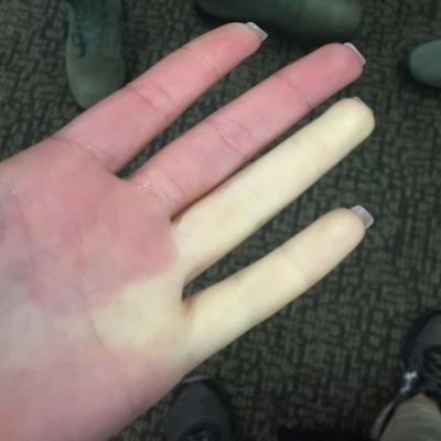 Conheça a rara doença que deixa seus dedos brancos