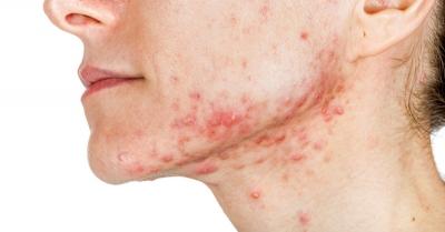 10 remédios caseiros para combater a acne