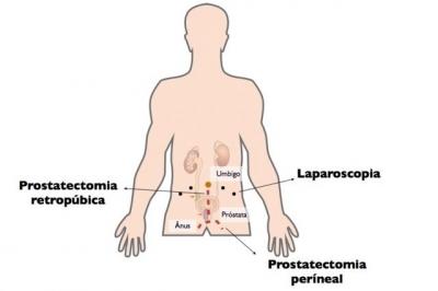 Cirurgia de próstata: recuperação e consequências