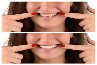 Facetas dentárias de resina ou porcelana: vantagens e desvantagens