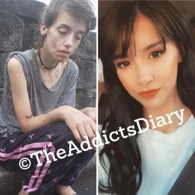 Antes e depois de pessoas que pararam de usar drogas #3